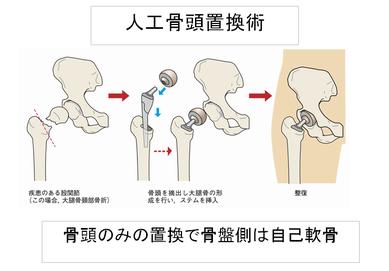 人工骨頭置換術