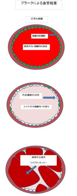 プラークによる血管栓塞