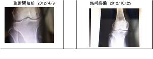 施術前後の比較レントゲン写真