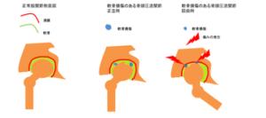 大腿骨頭壊死症の痛みが発生する原理