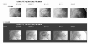 骨頭の不完全回復と軟骨の再生画像