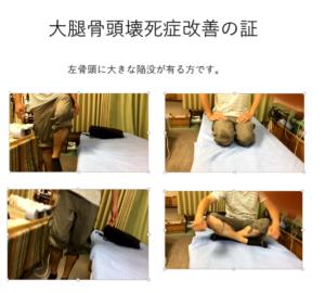 大腿骨頭壊死症改善の証