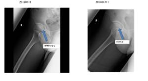 骨頭の完全回復の画像