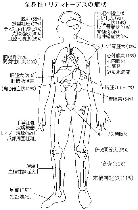 全身性エリテマトーデスの症状