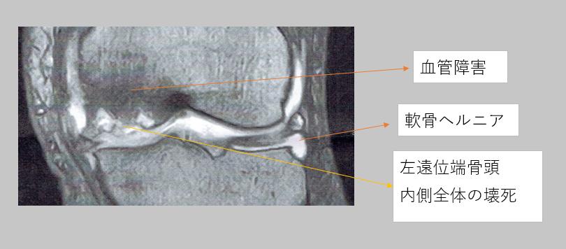 相談者の左側大腿骨頭遠位端内側壊死症画像
