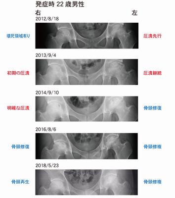 両側性大腿骨頭壊死症の骨再生経過のレントゲン写真
