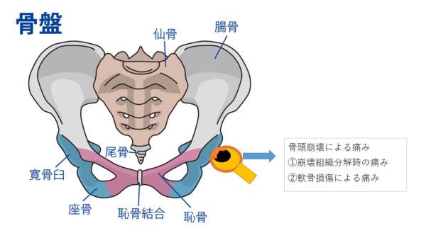 骨頭圧潰(骨折)の発生