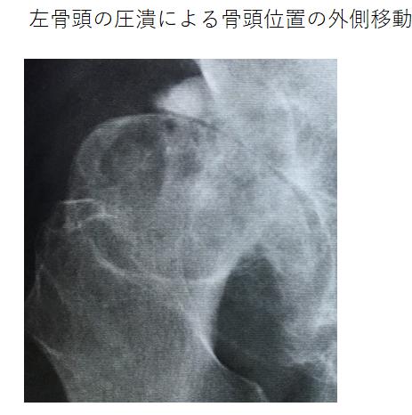 左側骨頭の現状