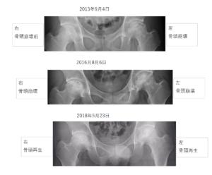 パターン1. 骨頭骨が完全に再生する。