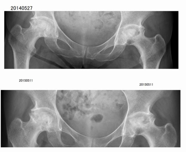パターン2. 骨頭変形部位に軟骨が再生充填される。
